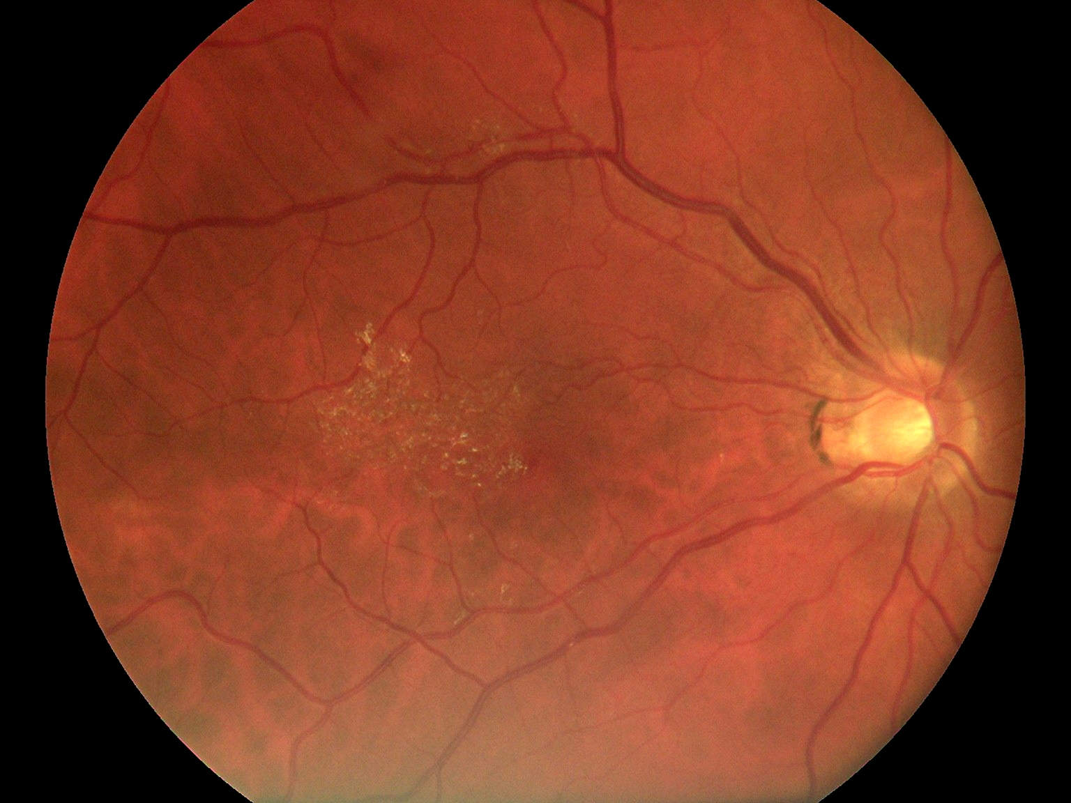 Fundus Module 300 Sample Picture 01