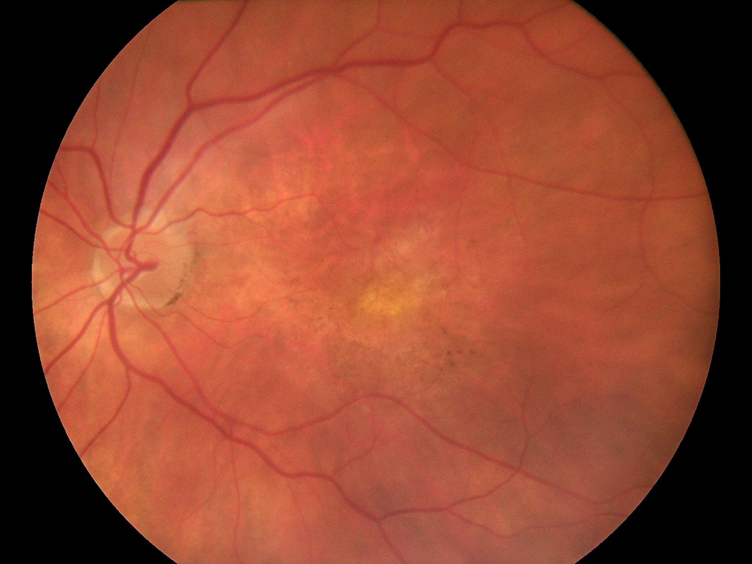 Fundus Module 300 Sample Picture 02