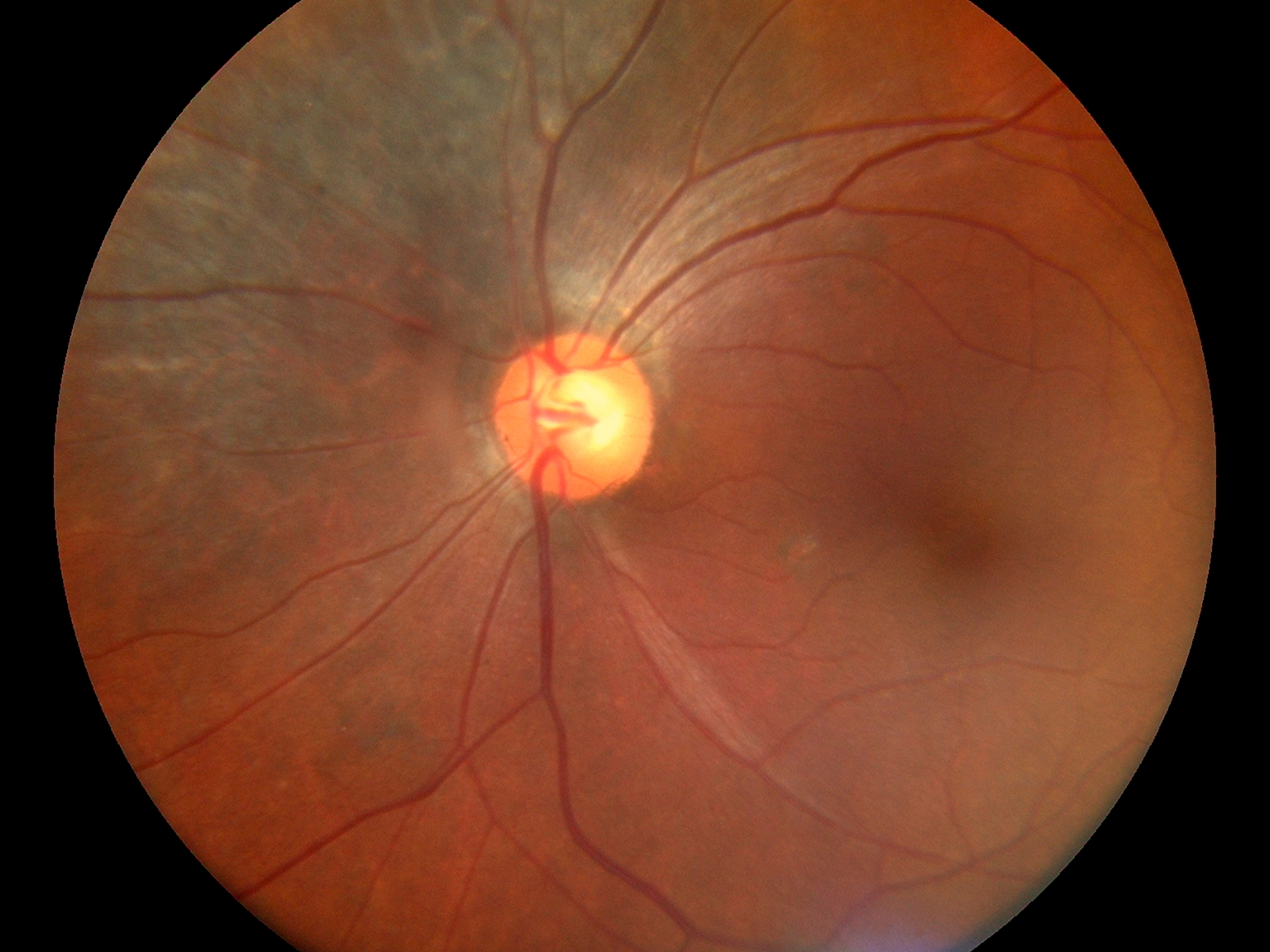 Fundus Module 300 Sample Picture 03