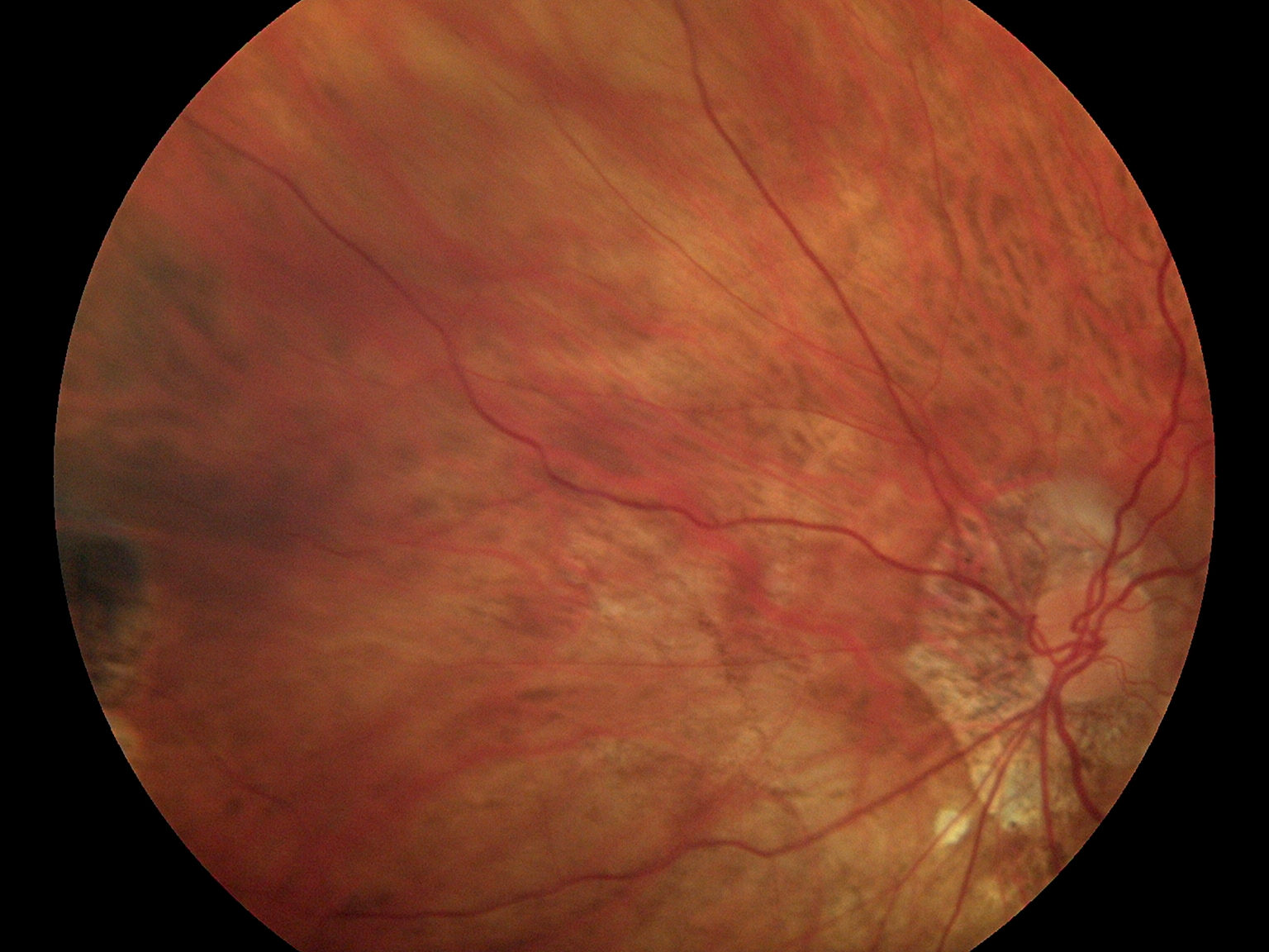 Fundus Module 300 Sample Picture 04