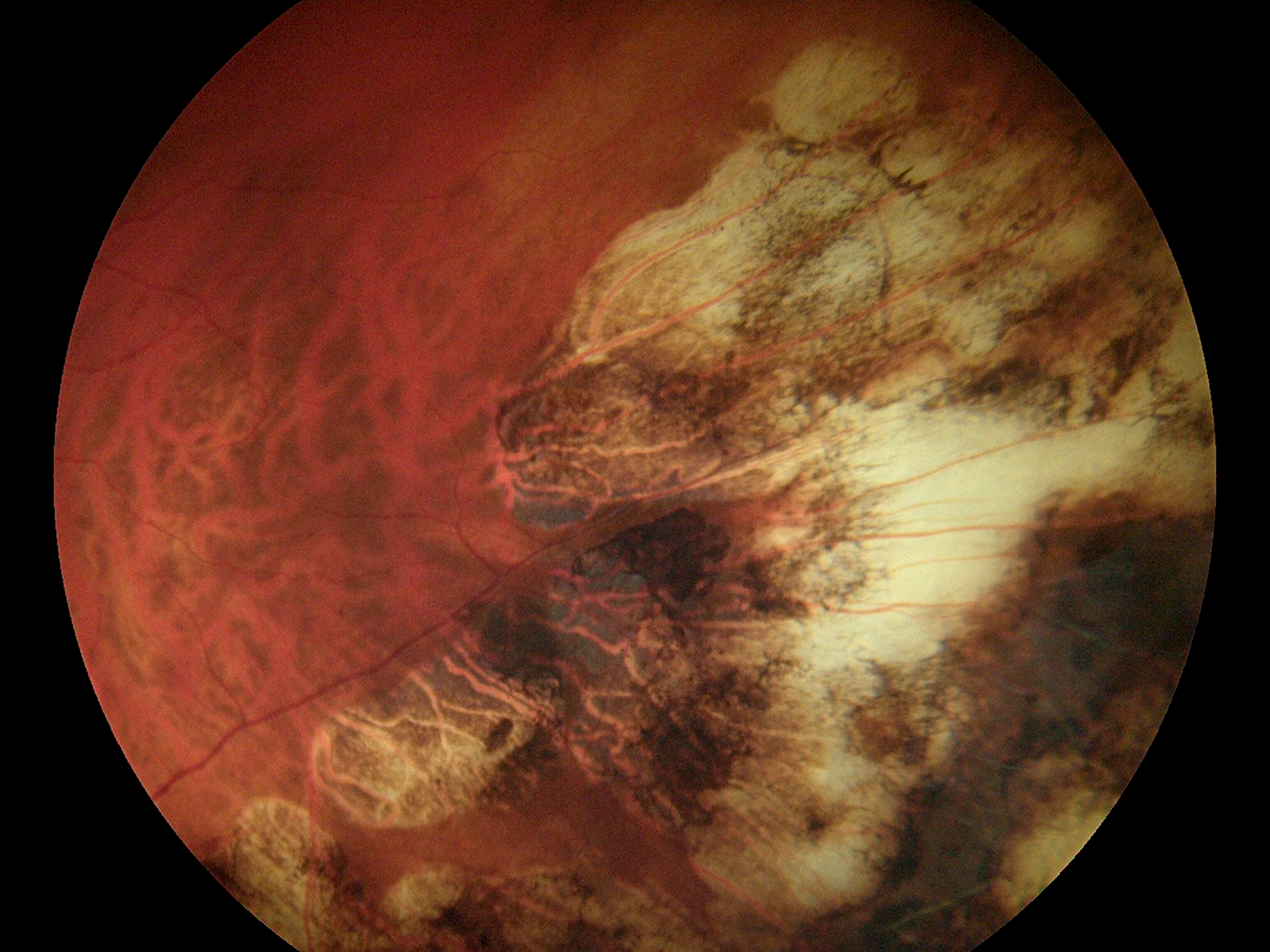 Fundus Module 300 Sample Picture 05