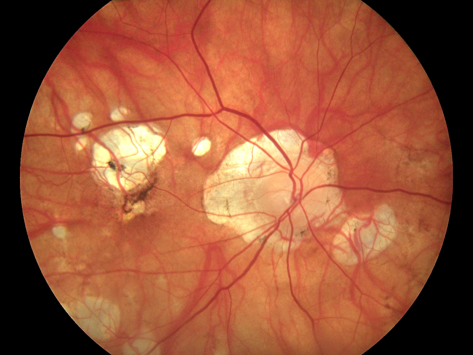 Fundus Module 300 Sample Picture 06