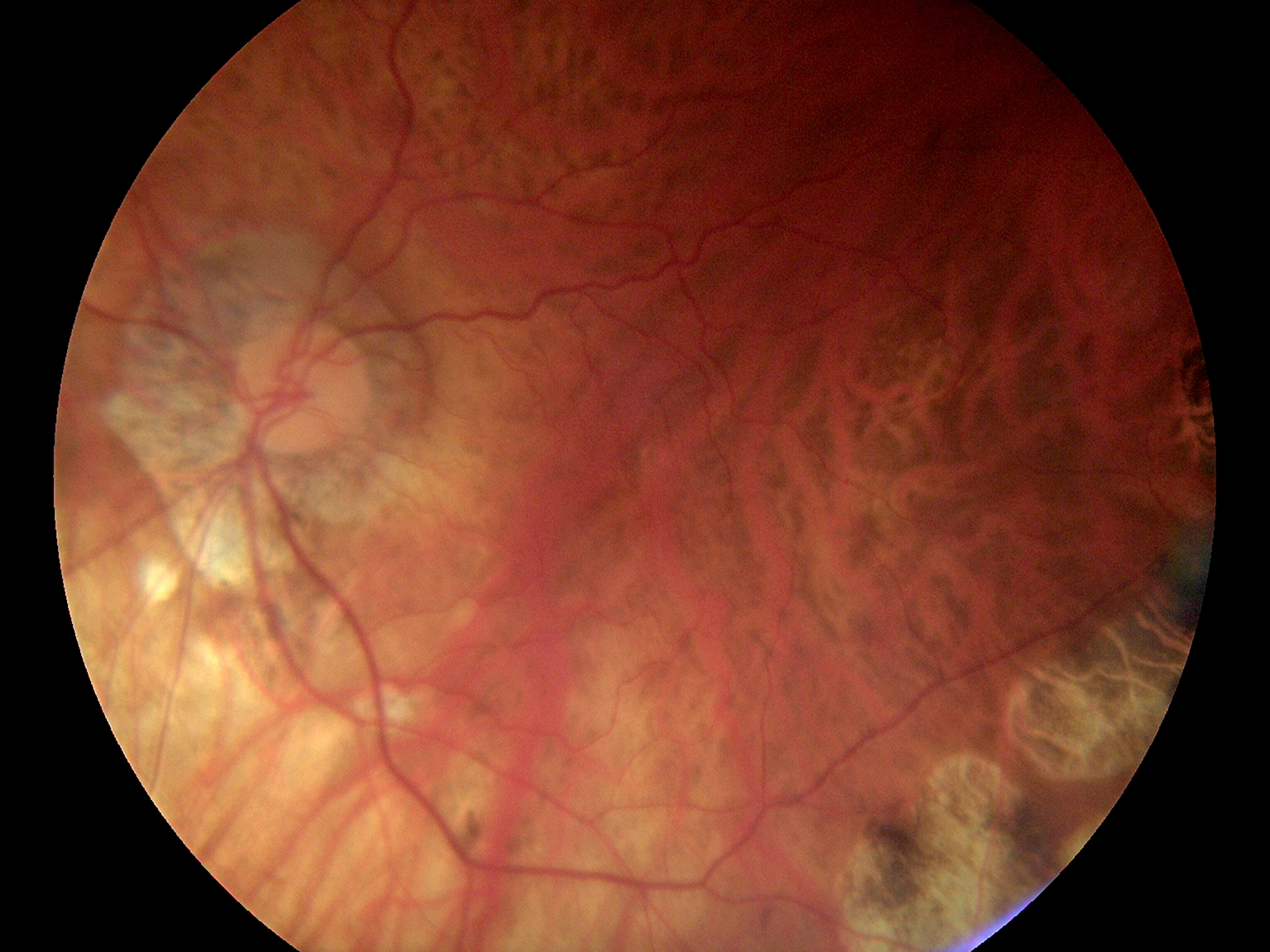 Fundus Module 300 Sample Picture 07