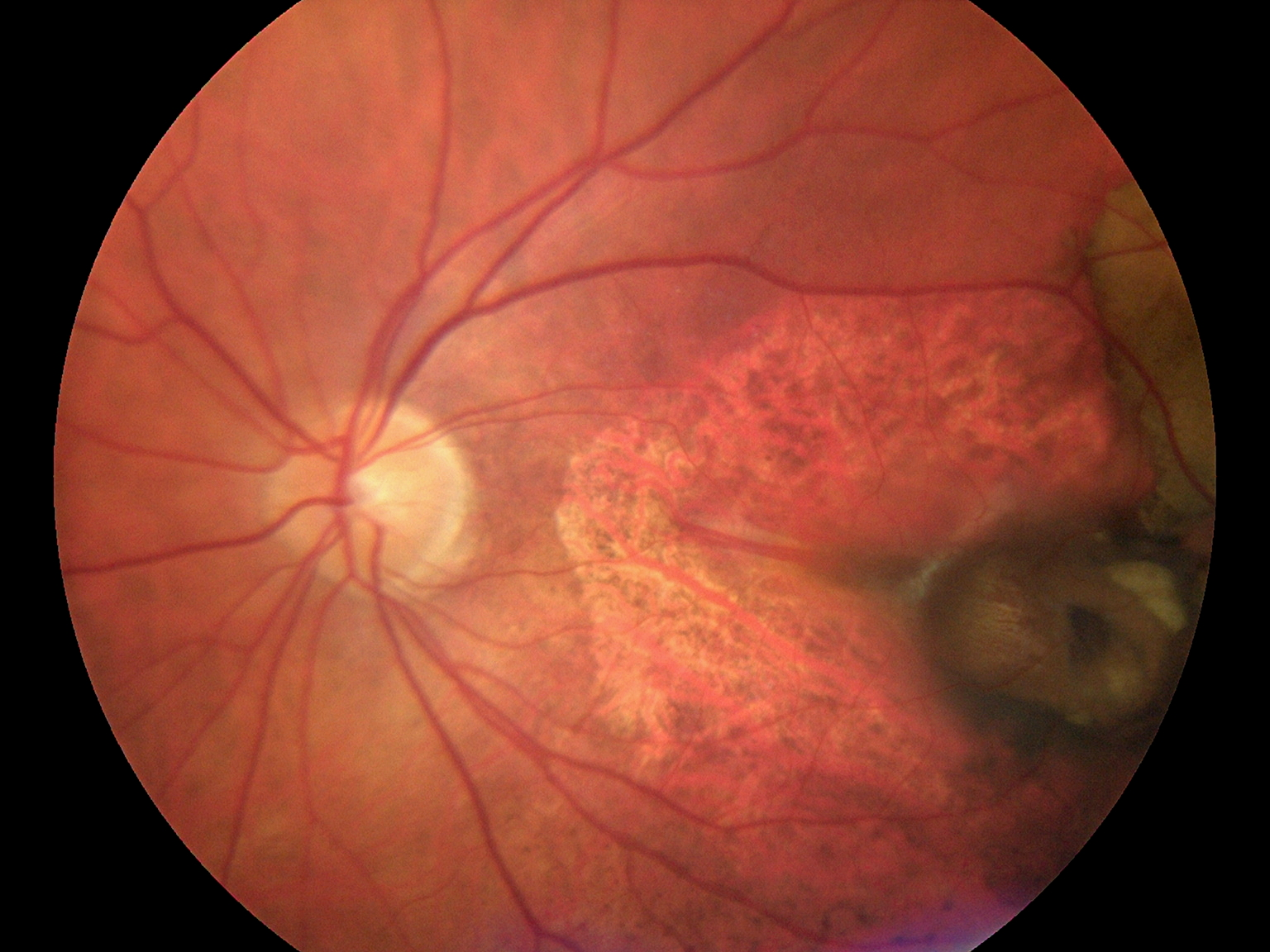 Fundus Module 300 Sample Picture 08