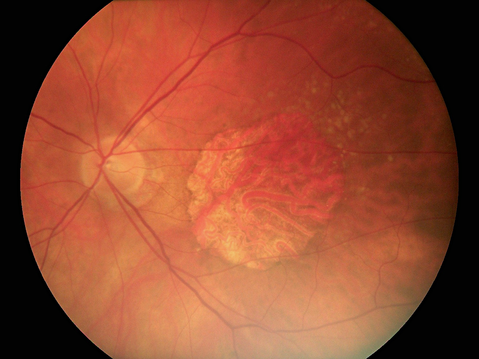 Fundus Module 300 Sample Picture 09
