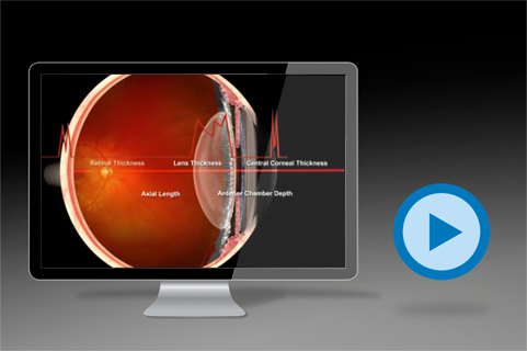 Central corneal thickness video
