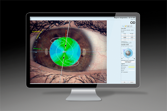 Plan the entire surgery with EyeSuite toric planner