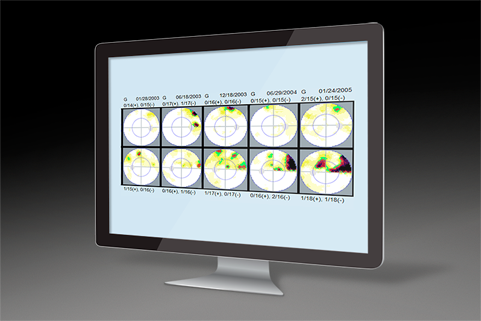 Image of a screen from EyeSuite software